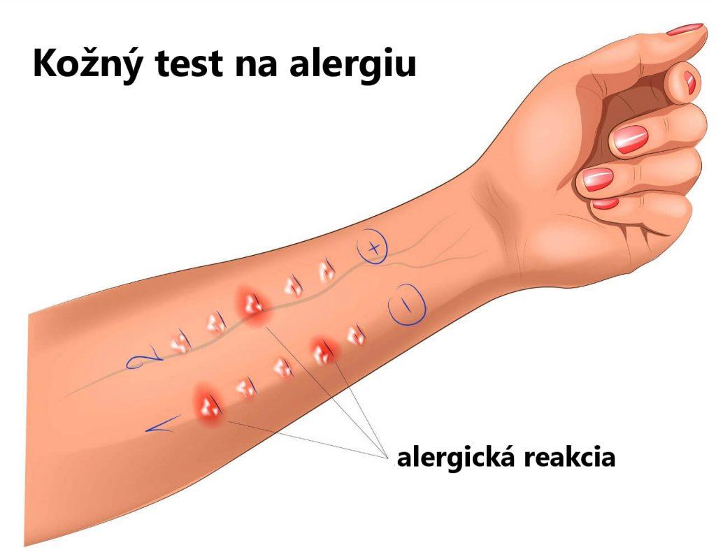 Kožný test na alergiu